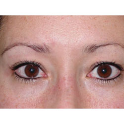 After picture permanent eyeliner.