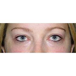 Permanent eyeliner photo.