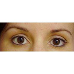 After permanent eyeliner.