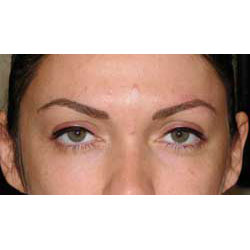 After permanent eyeliner, upper eyelids.